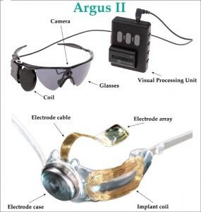 Arugs-II Bionic Eye System